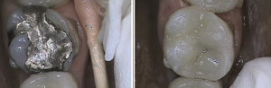 BE teeth4 small (1)