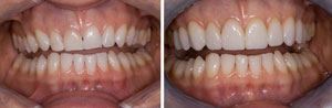 BE veneers small (1)